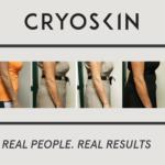 Cryoskin Revolution