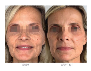 ClearLift Facial